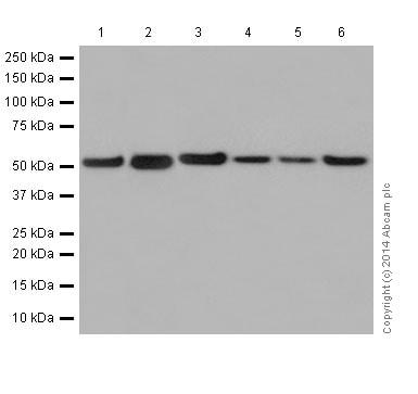 Western印迹-抗β-微管蛋白抗体[EPR1674](AB179513)