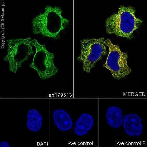 免疫细胞化学/免疫荧光抗β-微管蛋白抗体[EPR1674](AB179513)