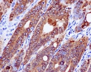 Immunohistochemistry (Formalin/PFA-fixed paraffin-embedded sections) - Anti-COX2 / Cyclooxygenase 2 antibody [EPR12012] (ab179800)