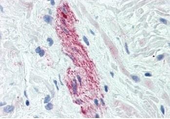 Immunohistochemistry (Formalin/PFA-fixed paraffin-embedded sections) - Anti-Nestin antibody [2C1.3A11] (ab18102)