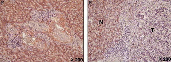 Immunohistochemistry (Formalin/PFA-fixed paraffin-embedded sections) - Anti-Alpha 1 microglobulin [BN11.10] antibody (ab18513)
