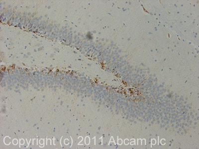 Immunohistochemistry (Formalin/PFA-fixed paraffin-embedded sections) - Anti-Doublecortin antibody (ab18723)
