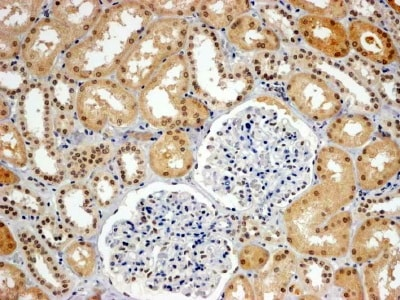 Immunohistochemistry (Formalin/PFA-fixed paraffin-embedded sections) - Anti-WHIP antibody (ab18729)