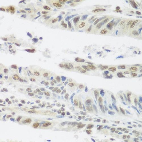 Immunohistochemistry (Formalin/PFA-fixed paraffin-embedded sections) - Anti-SNAIL + SLUG antibody (ab180714)