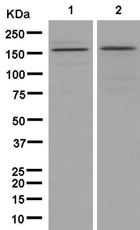 Western blot - Anti-KDM5B / PLU1 / Jarid1B antibody [EPR12704] (ab181089)