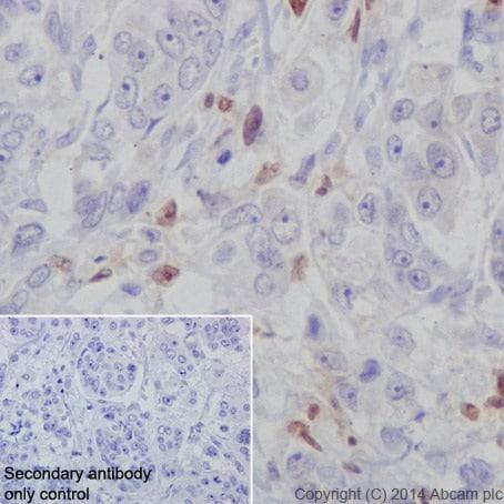 Immunohistochemistry (Formalin/PFA-fixed paraffin-embedded sections) - Anti-IRF5 antibody [EPR17067] (ab181553)