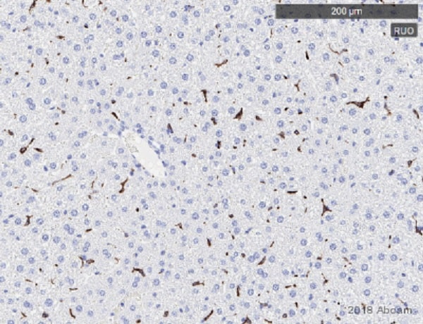 Immunohistochemistry (Formalin/PFA-fixed paraffin-embedded sections) - Anti-CD163 antibody [EPR19518] (ab182422)