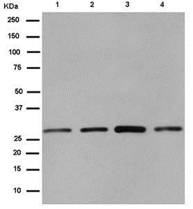 免疫印迹-抗CLIC4抗体[EPR14253](ab183043)