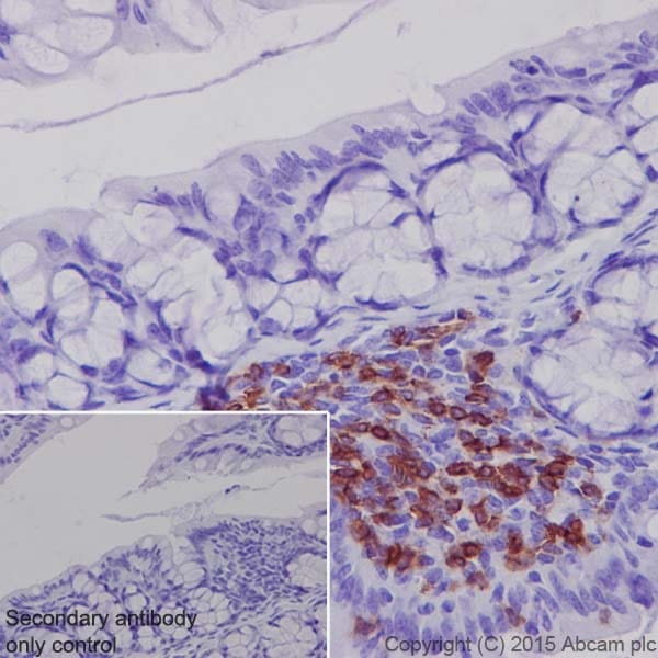 Immunohistochemistry (Formalin/PFA-fixed paraffin-embedded sections) - Anti-CD4 antibody [EPR19514] (ab183685)