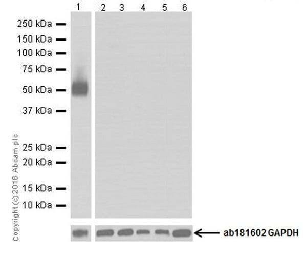 Western blot - Anti-CD4 antibody [EPR19514] (ab183685)