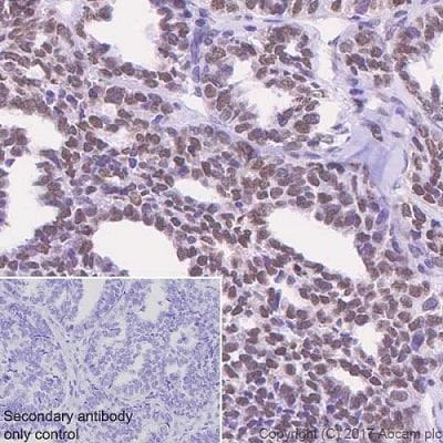 Immunohistochemistry (Formalin/PFA-fixed paraffin-embedded sections) - Anti-APE1 antibody [EPR18378-45] - ChIP Grade (ab189474)