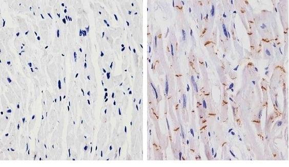 Immunohistochemistry (Formalin/PFA-fixed paraffin-embedded sections) - Anti-N Cadherin antibody [8C11] (ab19348)