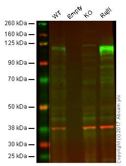 Western blot - Anti-Ctip1/BCL-11A antibody [EPR14943-44] (ab191401)