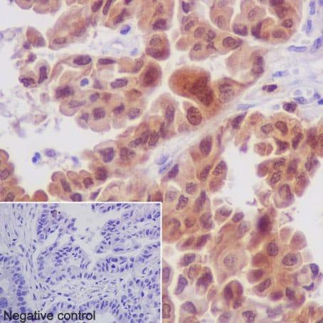Immunohistochemistry (Formalin/PFA-fixed paraffin-embedded sections) - Anti-MEK3 antibody [EPR17345-104] (ab195037)
