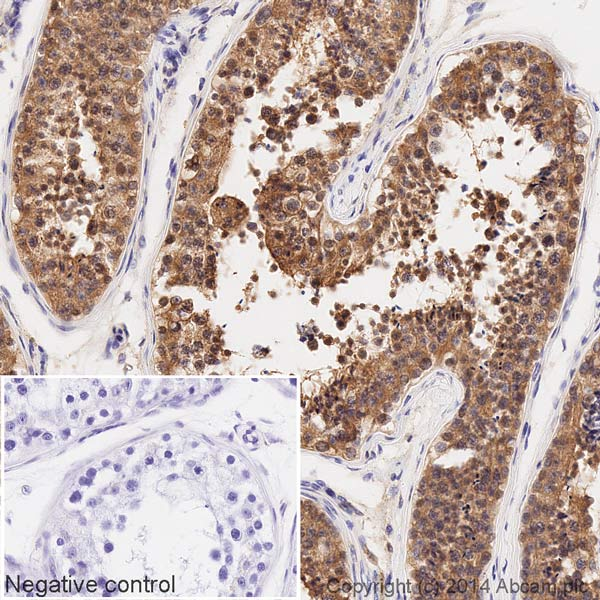 Immunohistochemistry (Formalin/PFA-fixed paraffin-embedded sections) - Anti-mTOR (phospho S2448) antibody [EPR426(2)] (HRP) (ab196914)