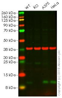 Western blot - Anti-S100A4 antibody [EPR14639(2)] (ab197896)