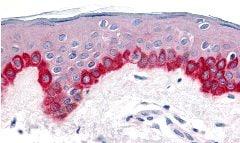 Immunohistochemistry (Formalin/PFA-fixed paraffin-embedded sections) - Anti-APAF1 antibody (ab2000)