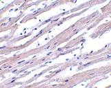 Immunohistochemistry (Formalin/PFA-fixed paraffin-embedded sections) - Anti-APAF1 antibody (ab2001)