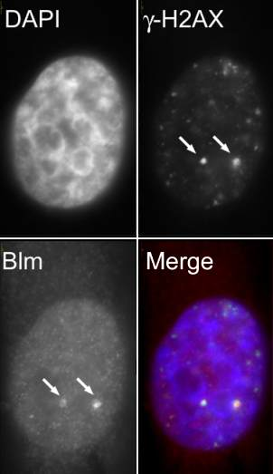 Immunocytochemistry - Anti-Blooms Syndrome Protein Blm antibody (ab2179)