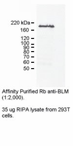 Western blot - Blooms Syndrome Protein Blm antibody (ab2179)