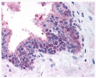 Immunohistochemistry (Formalin/PFA-fixed paraffin-embedded sections) - Anti-FANCD2 antibody (ab2187)