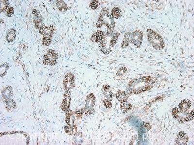 Immunohistochemistry (Formalin/PFA-fixed paraffin-embedded sections) - Anti-CD44 antibody [MEM-85] (ab2212)
