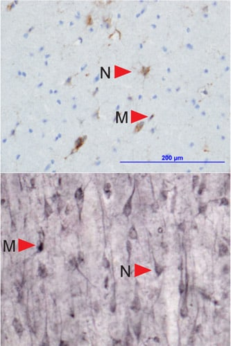 Immunohistochemistry (PFA perfusion fixed frozen sections) - Anti-HLA E antibody [MEM-E/02] (ab2216)