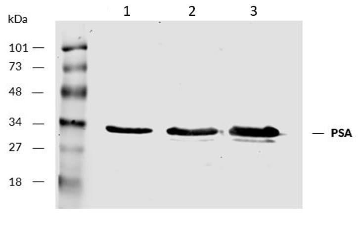 Western blot - Anti-Prostate Specific Antigen antibody [A67-B/E3] (ab2218)