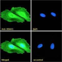 Immunocytochemistry - Anti-DDAH1 antibody (ab2231)