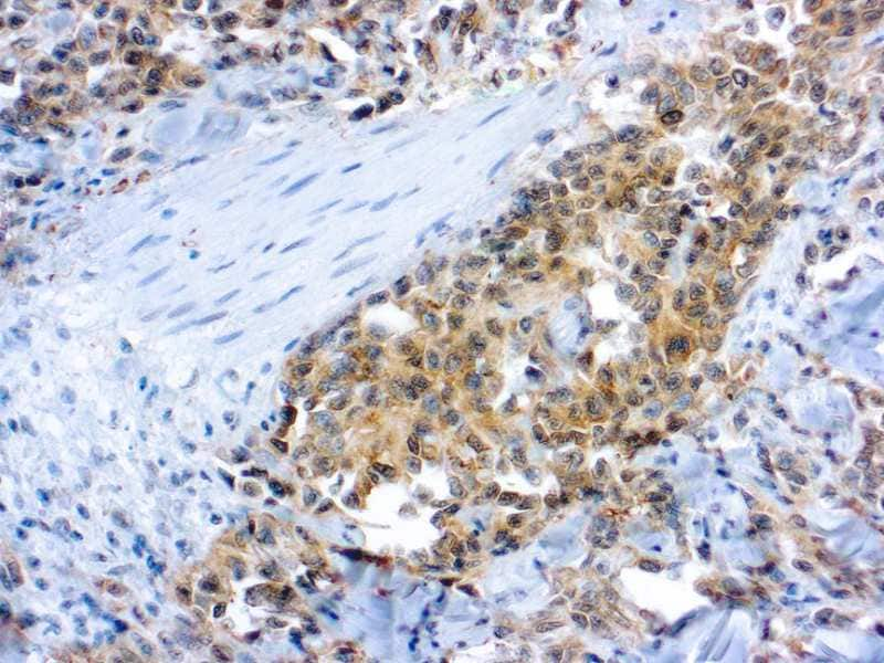 Immunohistochemistry (Formalin/PFA-fixed paraffin-embedded sections) - Anti-VEGF Receptor 2 antibody (ab2349)