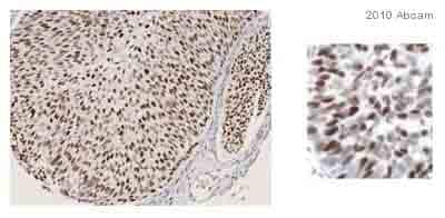 Immunohistochemistry (Formalin/PFA-fixed paraffin-embedded sections) - Anti-MCM7/PRL antibody [47DC141] (ab2360)