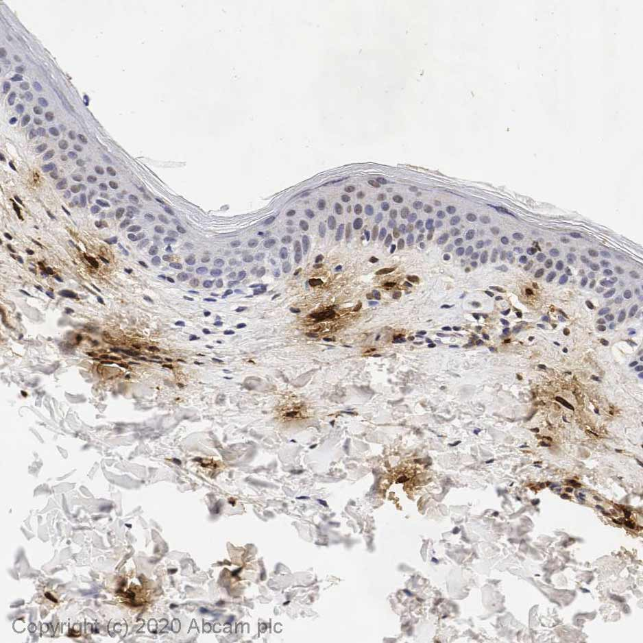 Immunohistochemistry (Formalin/PFA-fixed paraffin-embedded sections) - Anti-Mast Cell Tryptase antibody [AA1] (ab2378)