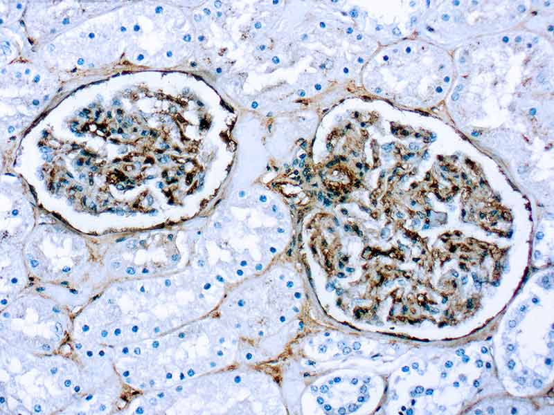 Immunohistochemistry (Formalin/PFA-fixed paraffin-embedded sections) - Anti-Fibronectin antibody (ab2413)