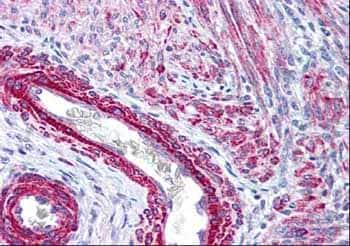 Immunohistochemistry (Formalin/PFA-fixed paraffin-embedded sections) - Anti-Myosin light chain (phospho S20) antibody (ab2480)