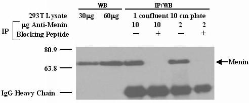 Western blot - Anti-Menin antibody - ChIP Grade (ab2605)