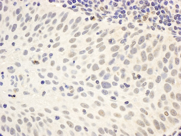 Immunohistochemistry (Formalin/PFA-fixed paraffin-embedded sections) - Anti-Menin antibody - ChIP Grade (ab2605)