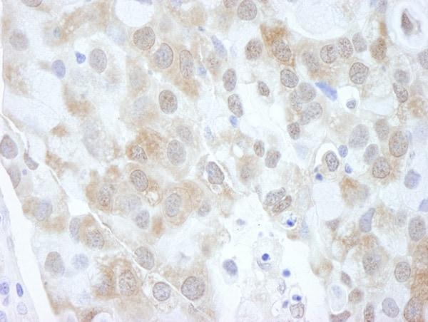 Immunohistochemistry (Formalin/PFA-fixed paraffin-embedded sections) - Anti-eIF4EBP1 antibody (ab2606)