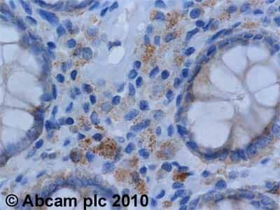 Immunohistochemistry (Formalin/PFA-fixed paraffin-embedded sections) - Anti-eIF4G1 antibody (ab2609)