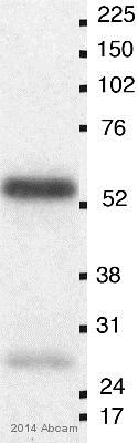 Western blot - Anti-O-Linked N-Acetylglucosamine [HGAC85] antibody - ChIP Grade (ab2735)