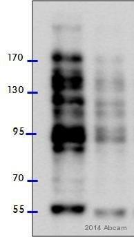 Western blot - Anti-O-Linked N-Acetylglucosamine antibody [RL2] (ab2739)