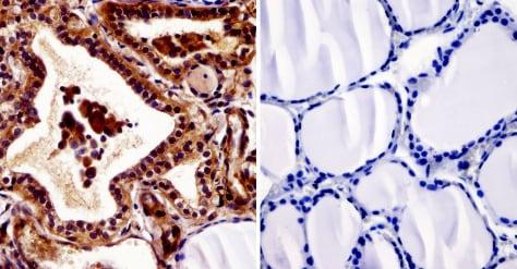 Immunohistochemistry (Formalin/PFA-fixed paraffin-embedded sections) - Anti-Thyroid Hormone Receptor [C3] antibody - ChIP Grade (ab2743)