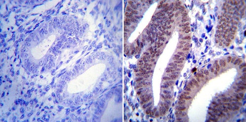 Immunohistochemistry (Formalin/PFA-fixed paraffin-embedded sections) - Anti-Progesterone Receptor antibody [Alpha PR6] - ChIP Grade (ab2765)