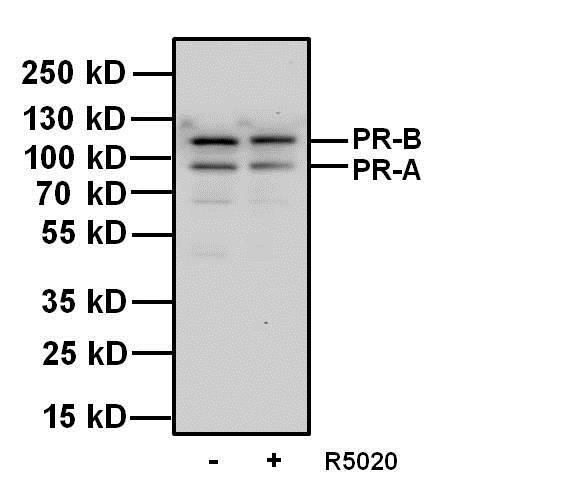Western blot - Anti-Progesterone Receptor antibody [Alpha PR6] - ChIP Grade (ab2765)