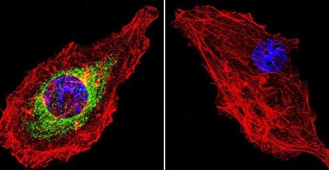 Immunocytochemistry/ Immunofluorescence - Anti-Glucocorticoid Receptor antibody [BuGR2] - ChIP Grade (ab2768)