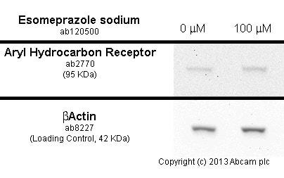 Western blot - Anti-Aryl hydrocarbon Receptor antibody [RPT1] (ab2770)