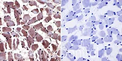 Immunohistochemistry (Formalin/PFA-fixed paraffin-embedded sections) - Anti-Aryl hydrocarbon Receptor  antibody [RPT1] - ChIP Grade (ab2770)