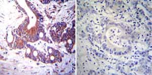 Immunohistochemistry (Formalin/PFA-fixed paraffin-embedded sections) - Anti-Mineralocorticoid Receptor antibody [H10E4C9F] (ab2774)