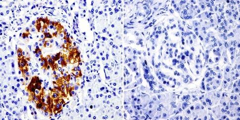 Immunohistochemistry (Formalin/PFA-fixed paraffin-embedded sections) - Anti-SRC3 antibody [AX15.3] - ChIP Grade (ab2782)