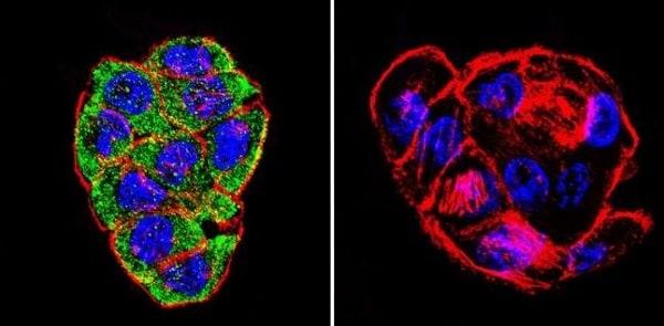 Immunocytochemistry/ Immunofluorescence - Anti-CFTR antibody [CF3] (ab2784)