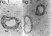 Immunohistochemistry (Formalin/PFA-fixed paraffin-embedded sections) - Anti-Endothelin 1 antibody [TR.ET.48.5] (ab2786)